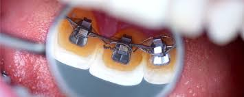 north carolina dentist orthodontist happy tooth