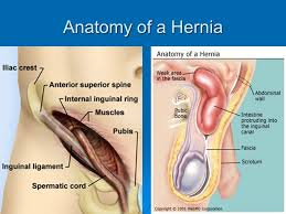 Webmd Human Anatomy Hernia Ppt Video Online Download