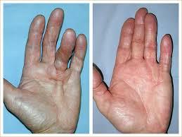 knoten handinnenfläche dupuytren erkrankung handchirurg dr huemer