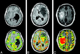 update on brain tumor imaging from anatomy to physiology