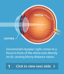 Color Blindness Contacts How Do Contact Lenses Work Allaboutvision Com