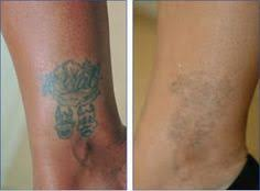 there is a natural inexpensive and pain free way to remove