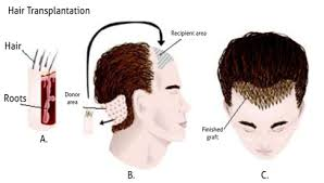 dhi hair transplant reviews what are the best dhi or fue hair transplant clinic in hyderabad
