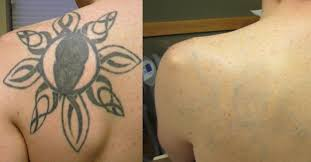 tattoo removal sioux falls best tatto 2017