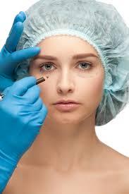 eyelid surgery answers on healthtap