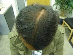 the hair centre male hair loss