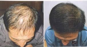 obat rambut penumbuh rambut botak mengatasi rambut rontok obat tradisional rambut rontok parah