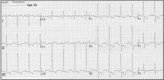 strain pattern ecg meaning ecg learning center an introduction to clinical electrocardiography