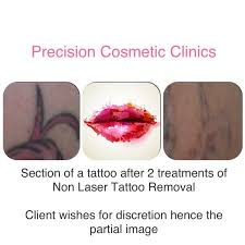 45 best laser removal tattoo images on pinterest creative from