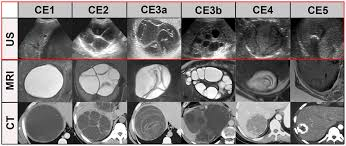 diagnosing and staging of cystic echinococcosis how do ct and mri