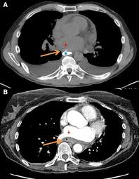 esophageal injury and atrioesophageal fistula caused by ablation