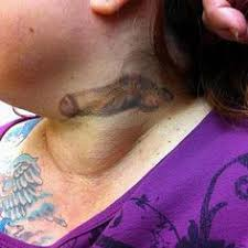 scary leftover tattoo removal disasters pinterest tattoo