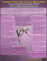 mri and disc bulge v o m i t u2013 trident manual therapy