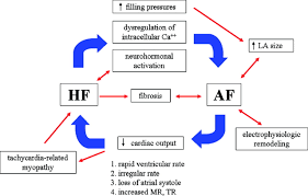 atrial fibrillation and heart failure circulation