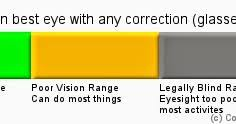 Legally Blind Definition Hueyify Com Legally Blind What Does That Mean Can You See Or Not