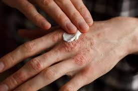 psoriasis treatment psoriasis treatment topical treatment and systemic treatment