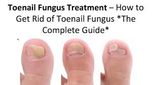 how to get rid of toenail fungus using 3 simple home treatments
