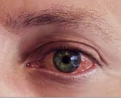 eye pain from light sore eyeball to touch red causes bruised muscles pain when
