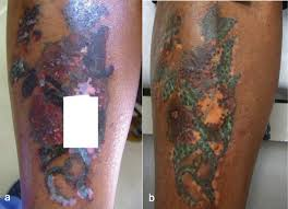 laser tattoo removal in dark skin types tattoo removal methods