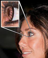 Contacts For Color Blindness Correction Contact Lens Wikipedia