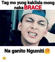 Kid With Braces Meme - tag mo yung kakilala mong naka brace na ganito ngumiti braces