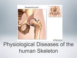 Joints Human Anatomy Physiological Diseases Of The Human Skeleton Inflammatory