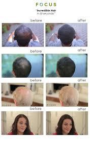focus hair products hair fiber building hair loss 101
