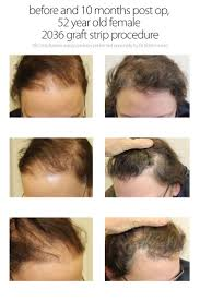 Stem Cells Hair Loss 1790 Best Hair Loss Help For Men Images On Pinterest Hair Loss