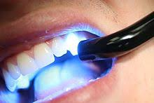 what is a dental curing light used for dental composite wikipedia