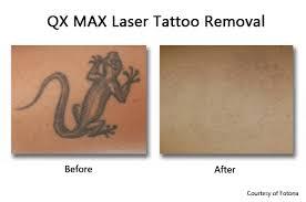 tattoo removal prasad cosmetic surgery