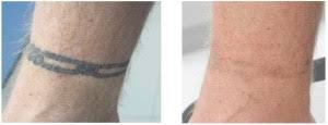tattoo removal cost schweiger dermatology group