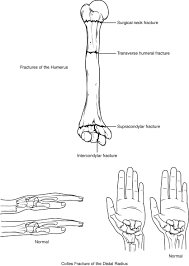 Normal Bone Anatomy And Physiology Bones Of The Upper Limb Anatomy And Physiology