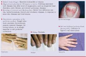 06 assessment of skin hair and nails