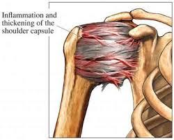 Muscle Anatomy Of Shoulder 9 Best Anatomy For Massage Images On Pinterest Shoulder Joint