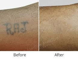 laser tattoo removal information doctors cost pictures