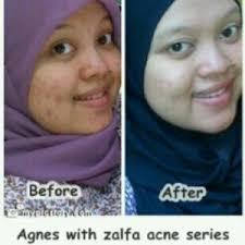 Serum Zalfa Miracle zalfa skincare testimoni zalfa miracle