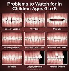 How To Whiten Kids Teeth Early Treatment Sherrick Orthodontics Rolla Missouri