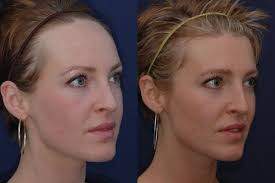 hairstyles for surgery the 25 best forehead reduction ideas on pinterest forehead