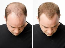 help with thinning hair case studies