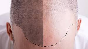 hair transplant in the philppines cost how hair transplants are boosting istanbul s receding tourism al