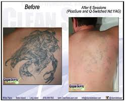 tattoo removal clean slate laser