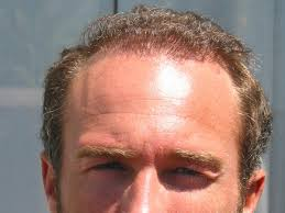 hairstyles for balding men over 60 25 awesome hairstyles for balding men slodive