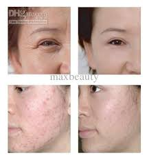 skinclinical reverse light therapy anti aging device reviews derma light led anti age device work soro 2018