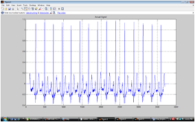 tutorial wavelet matlab ecg feature extraction with wavelet transform and st segment