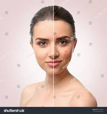 Face Mapping Acne Woman Face Before After Acne Treatment Stock Photo 603810884