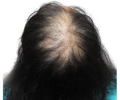 thinning hair in women on top of head top of woman s head with thinning hair before smp cute outfits