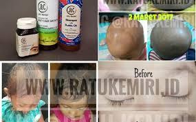 Minyak Kemiri Untuk Anak merk minyak kemiri untuk bayi archives ratu kemiri minyak kemiri