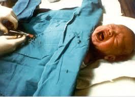 Amazon Com Genius Sleep Aid U2013 Smart Sleeping Pills U0026 Adrenal Circumcision Is Torture And Child Abuse