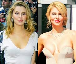 brandi glanville hair extensions brandi glanville plastic surgery before and after pictures