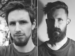 beard growth pattern at 23 versus 28 years old just goes to show